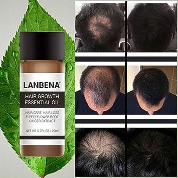 Edited Professional haarwuchsöl contra caída del cabello Científico pelo Serum, haaröl para pelo Crecimiento &