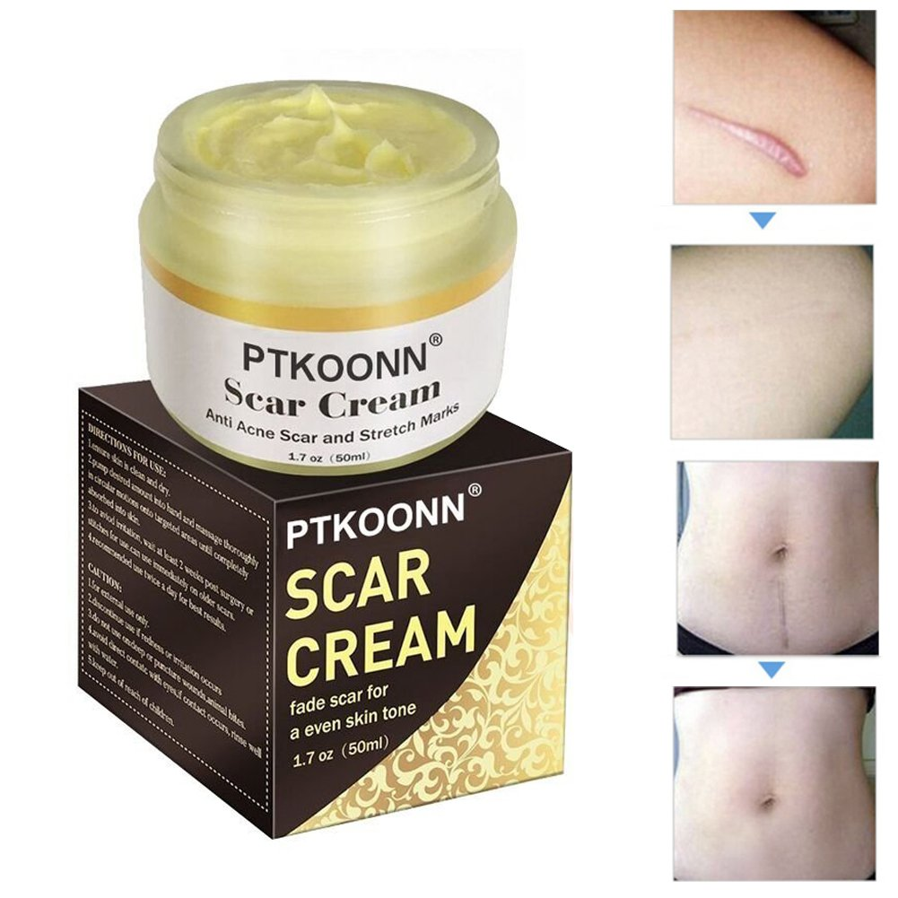 Narbencreme,Narbe gel,Narbenentfernung,Scar cream,Narbe Creme Narbe Behandlung,Scar Fade Cream,Behandeln Sie neue und alte Narben - Aknenarben, Dehnungsstreifen und Narben PTKOONN