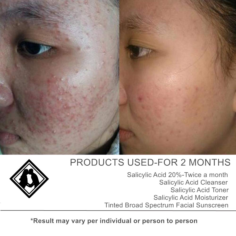 Facial peels with salacylic acid