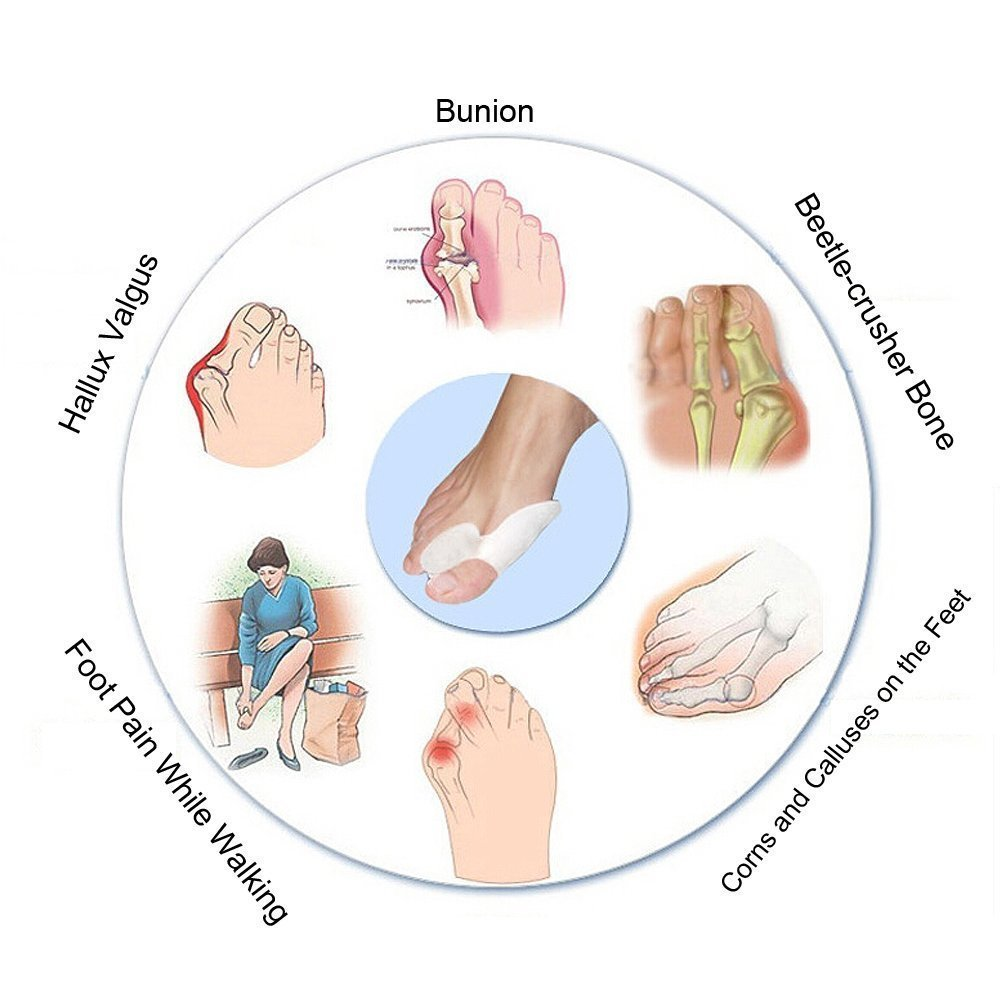 Amazon.com: Saliency Gel Toe Separators Stretchers Bunion Spacers ...