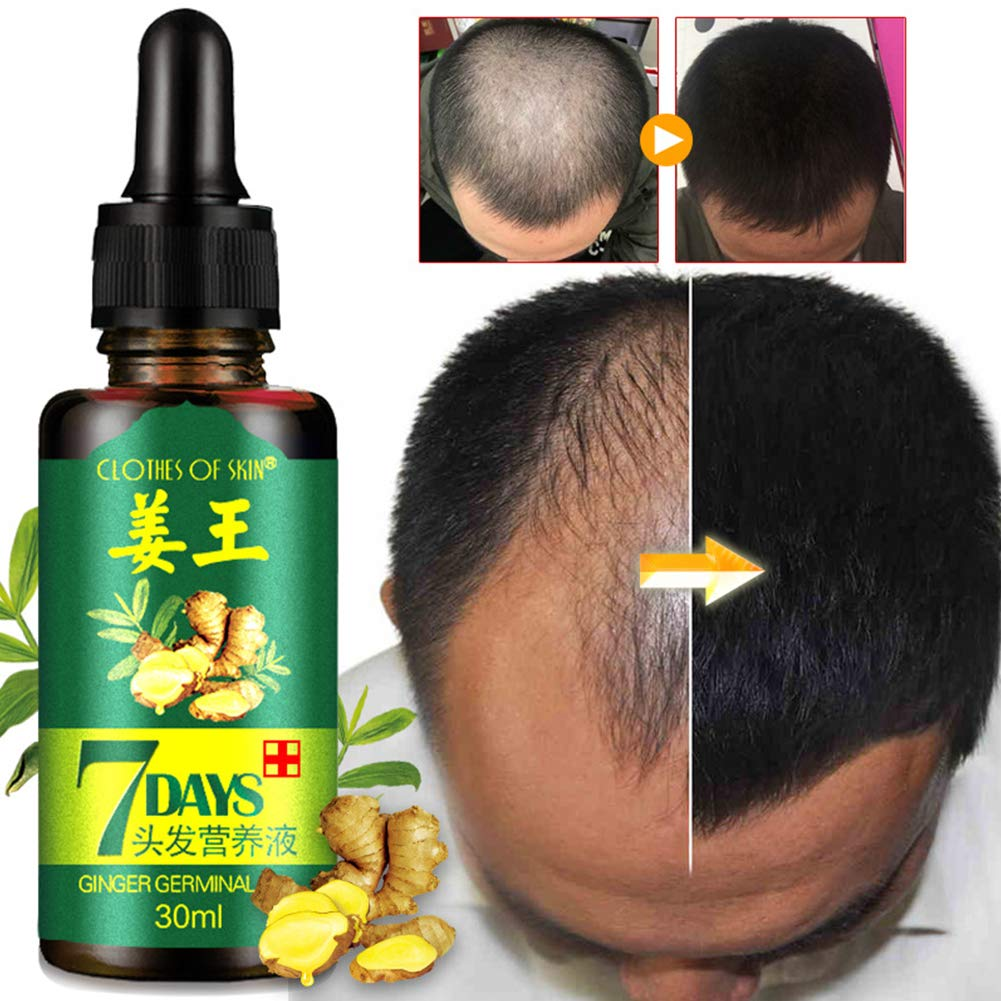 Yiwa Hair Growth Essence Liquid Fast Restoration Hair Care Hair Loss Nutrition Tool 30ml for Women Men EDTara