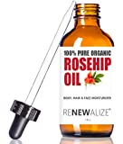 ORGANIC ROSEHIP SEED OIL MOISTURIZER - in Large 4 OZ. Dark Glass Bottle with Dropper | Unrefined, Cold Pressed Oil | An Essential Anti Aging Skin Wrinkle Repair & Acne Scar Healing Serum Toner
