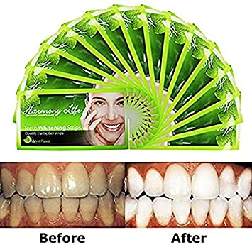 Amazon Com Upgraded Teeth Whitening Strips Hp Professional