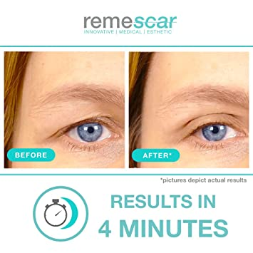 Remescar - Párpados caídos - Crema de efecto lifting para reducir las bolsas - Crema de ojos antienvejecimiento probada clínicamente para hombre y ...