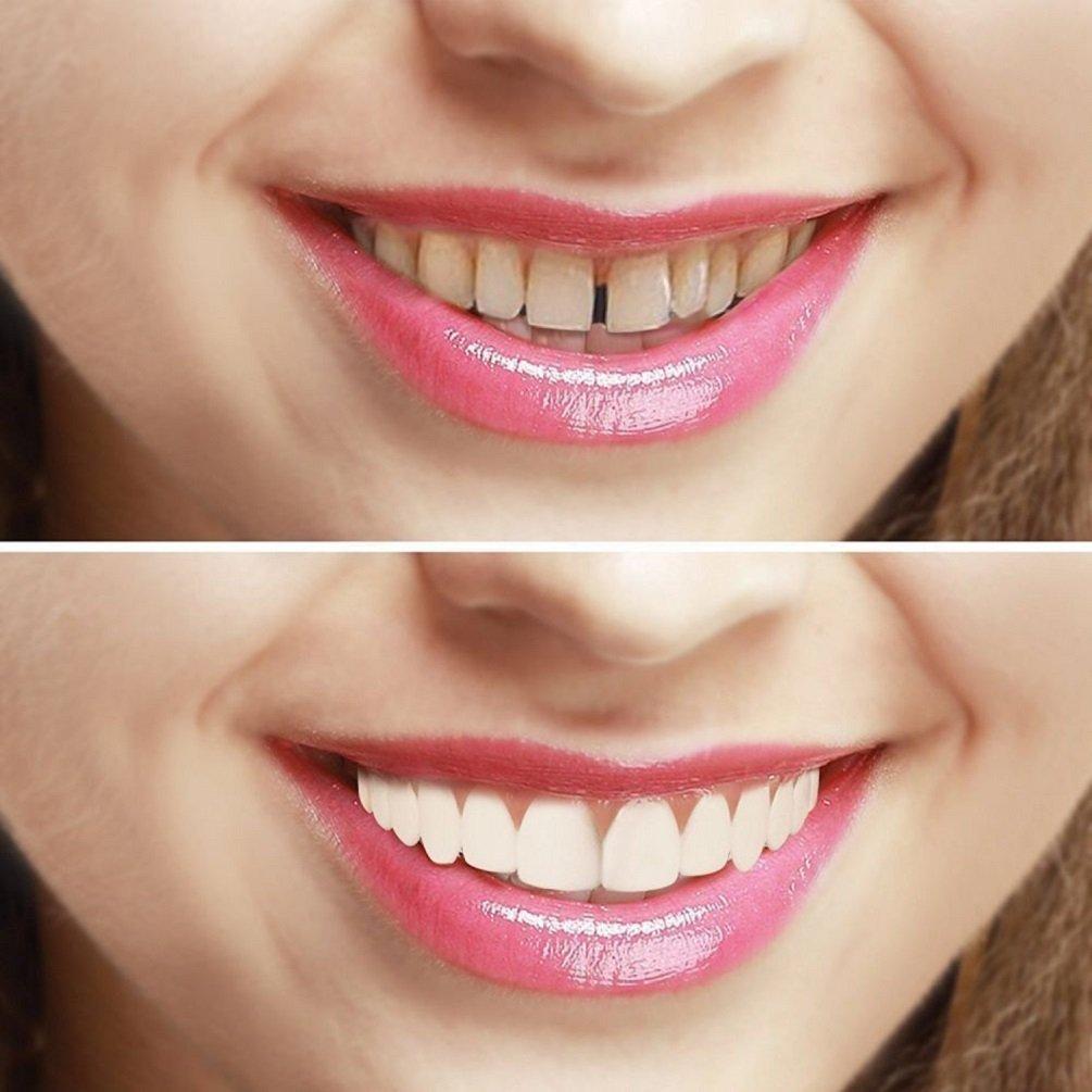 Perfecto Sonr/íe los dientes Hermosa Diente de sonrisa instant/ánea Dientes cosm/éticos Dentadura postiza
