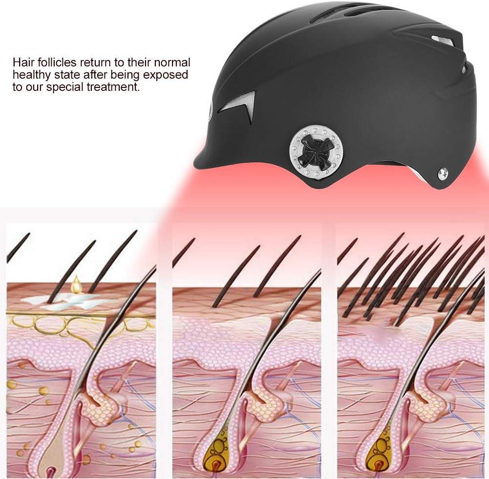 TMISHION Casco de lucha contra la pérdida de cabello con 650nm luz ...