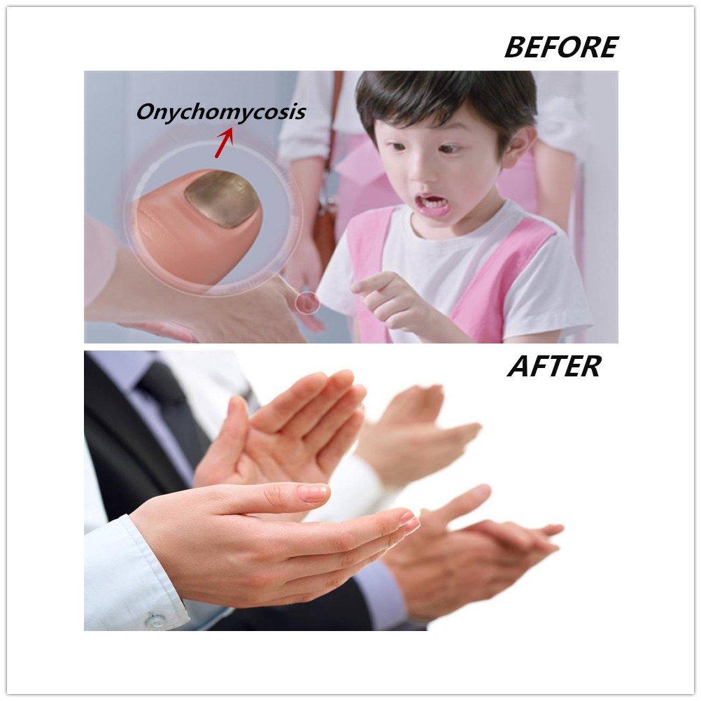 Amazon.com: Faladi Nail Cleaning Laser Device,Nail Fungus Treatment ...