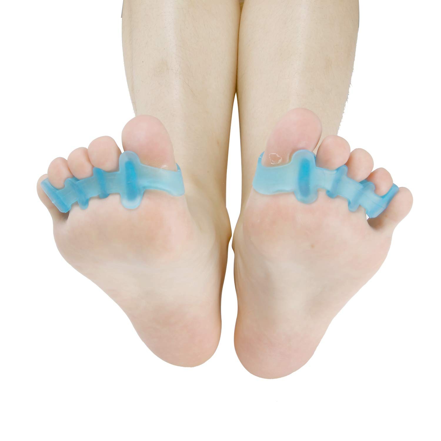 Toe Separators For Posture Correction, Bunions, Overlapping Toes, Hammer Toes, and Day to Day Use (blue) by Forever Thriving