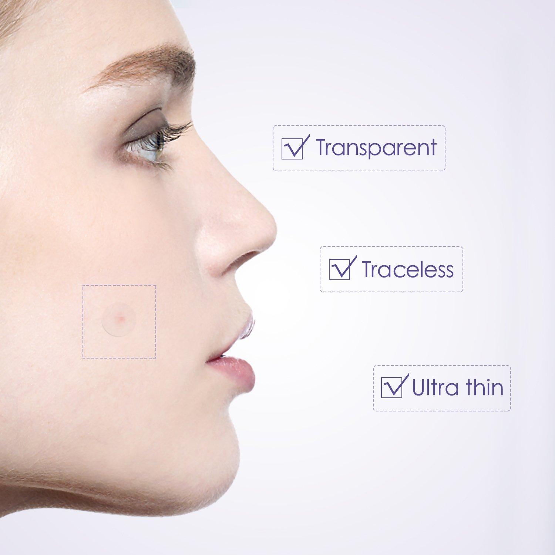 7 conseils pour une peau propre – sans boutons