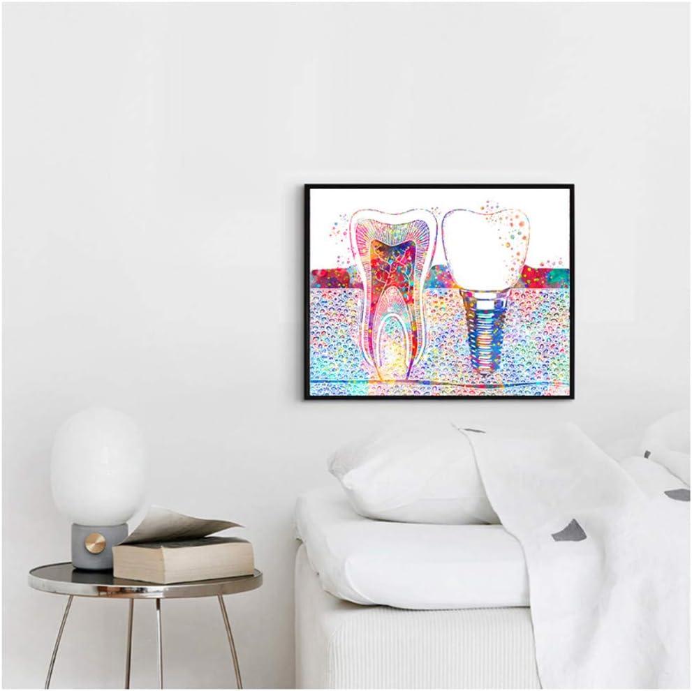 Cuadro de arte dental con implante dental, lienzo impreso en lienzo para dentistas, medicina, higienista, decoración de clínica dental, 40 x 60 cm, sin marco