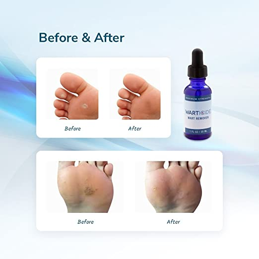 Warticide Fast-Acting Wart Remover, Plantar and Genital Warts Treatment