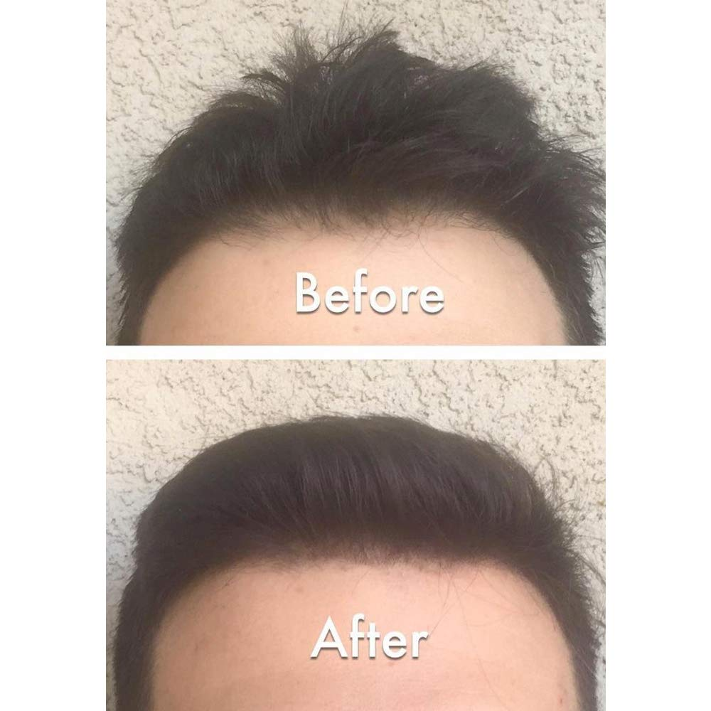 Nor1 Keratin Hair Building Fibers: Hair Fiber Filler & Thickener for Men & Women - Cover Up & Concealer for Thinning Areas or Minor Bald Spot - Thicker, Fuller Hair in Seconds - 25g, Dark Brown by Nor1 (Image #7)