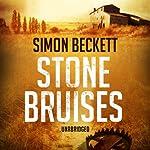 Stone Bruises | Simon Beckett