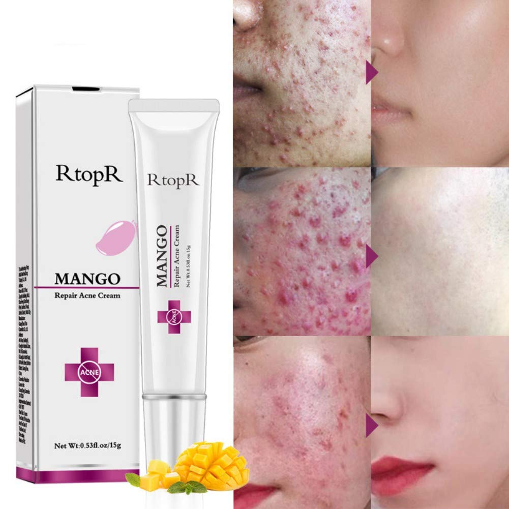 Amazon Com Mango Repair Acne Cream Scar Removal Cream Anti Acne