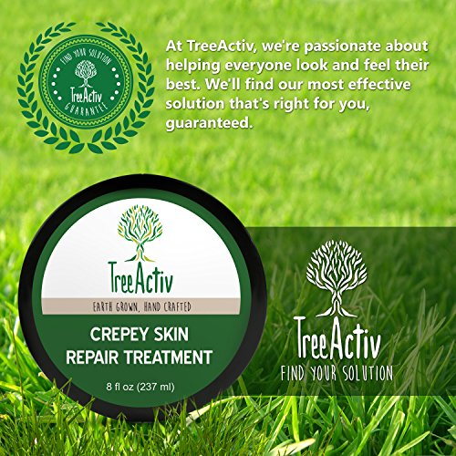 TreeActiv Crepey Skin Repair Treatment, Anti-Aging, Anti-Wrinkle, Organic Ingredients for Face, Neck, Chest, Legs & Arms, Hyaluronic Acid, Alpha Hydroxy Fruit Acids, Honey, Shea, Castor