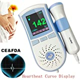 Upgrade Baby Heart Rate Detector Listener Non-Invasive Safe