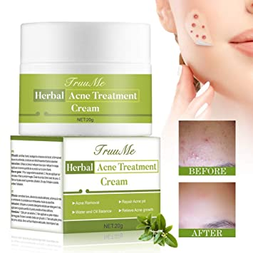 Buy Acne Scar Remover Cream Organics Acne Treatment Cream