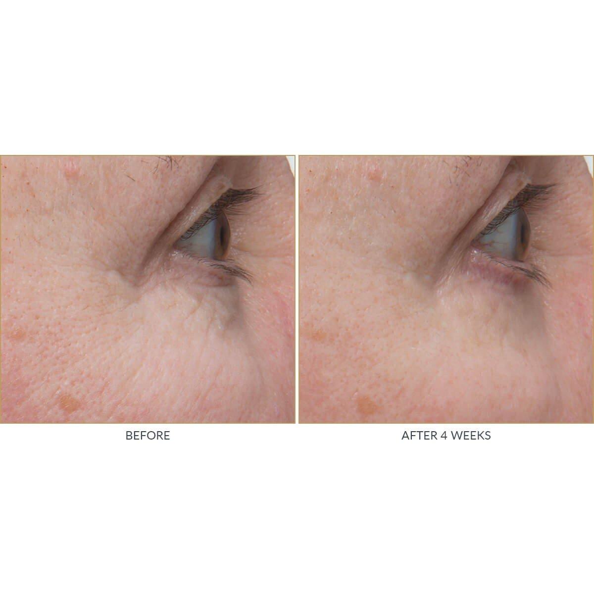 Kate Somerville +Retinol Firming Eye Cream - Eye Wrinkle Cream - Retinol Eye Cream (0.5 Fl. Oz) by Kate Somerville (Image #5)