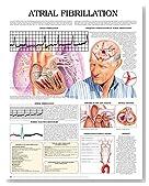 Atrial Fibrillation e chart: Full illustrated