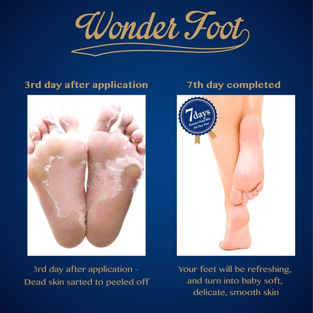 Amazon : Wonder Foot Exfoliating Foot Mask  With Lactic Acid & Milk  (ph36)  Guaranteed To Rejuvenate Your Foot In 7 Days  Sold Exclusively  On Amazon