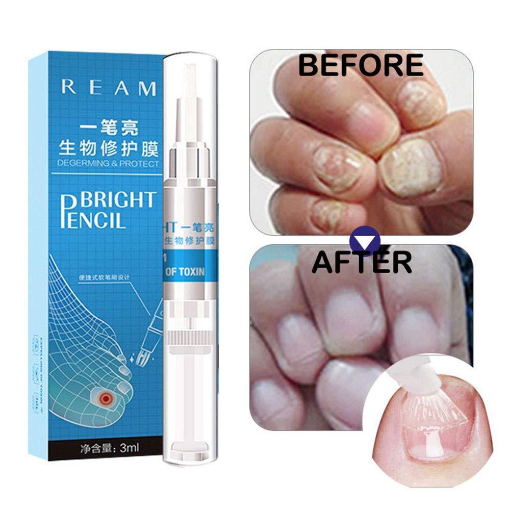 Toenail Fungus Treatment, Aolvo Toenail Antifungal, Nail Fungus Remover, Nail Fungus Treatment Herb Toe & Foot Anti Fungal Nail Repair Solution 3ML 3 Pack