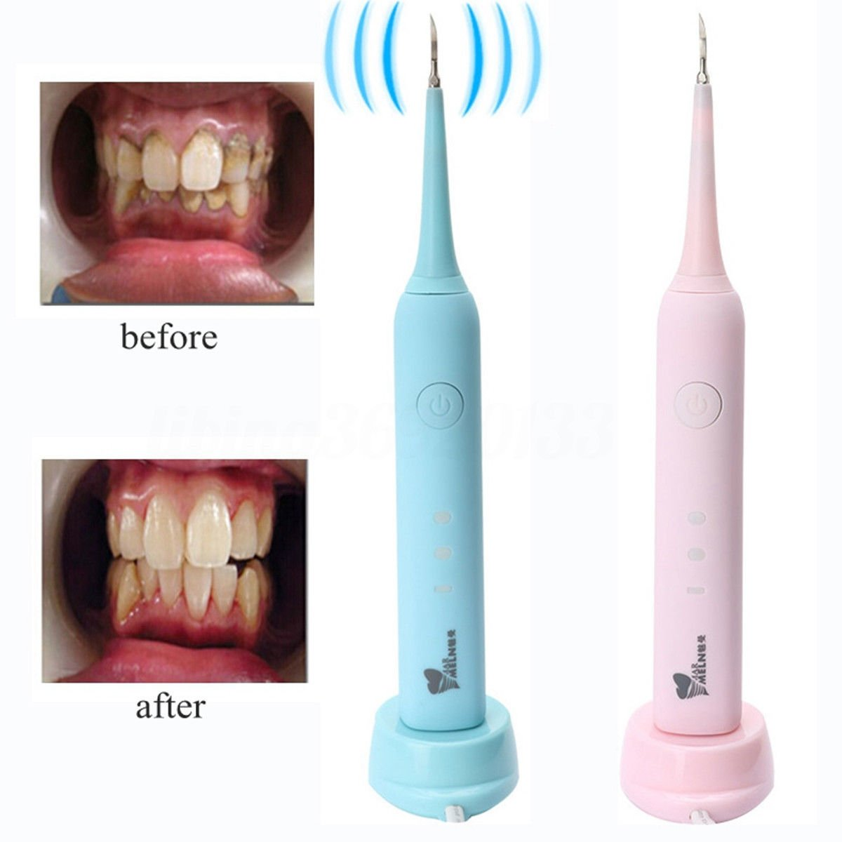 Amazon com: Ultrasonic Dental Calculus and Plaque Remover, Portable
