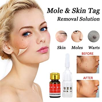 Amazon Com Mole Skin Tag Removal Solution Painless Mole Skin Dark