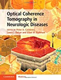 img - for Optical Coherence Tomography in Neurologic Diseases book / textbook / text book