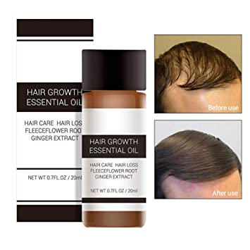 Get The Best Organic Hair Growth Products That Makes A Difference