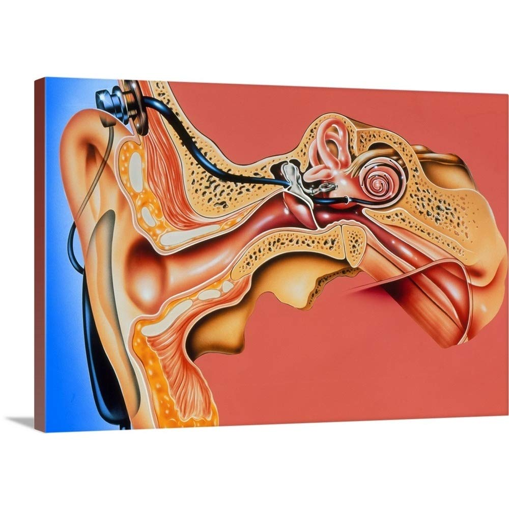 ジョンBavosiプレミアムthick-wrapキャンバス壁アートプリントアートワークの人工内耳インプラントというタイトルの耳 48
