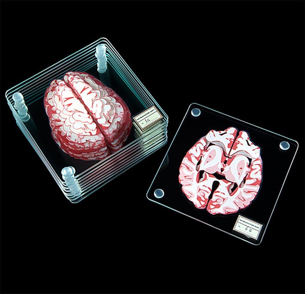 Brain Specimen Coasters by ThinkGeek (Image #2)