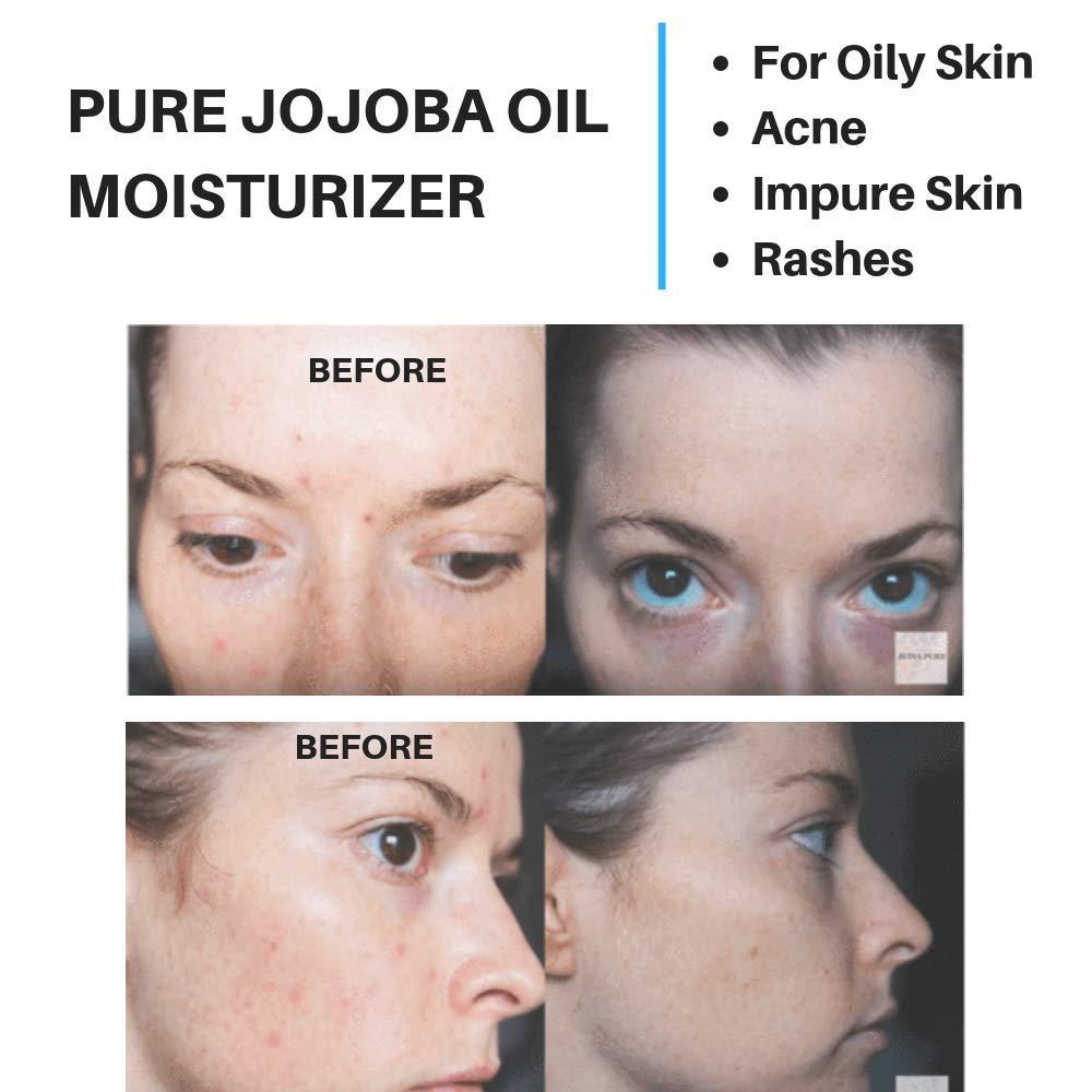 jojoba oil acne