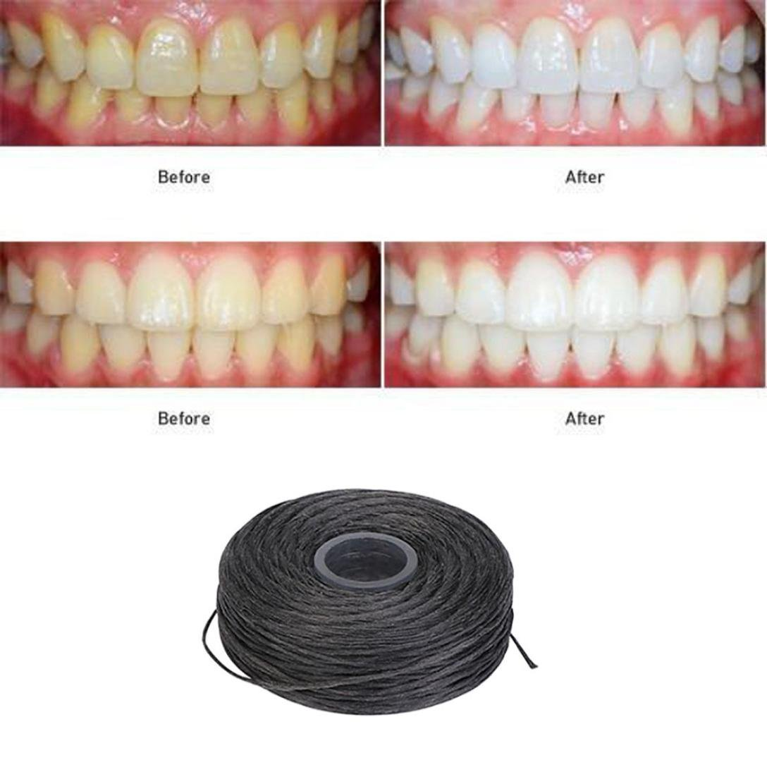 Creazy Flossing The Dirt Between The Teeth Removing Stains And Eliminating Bad Breath