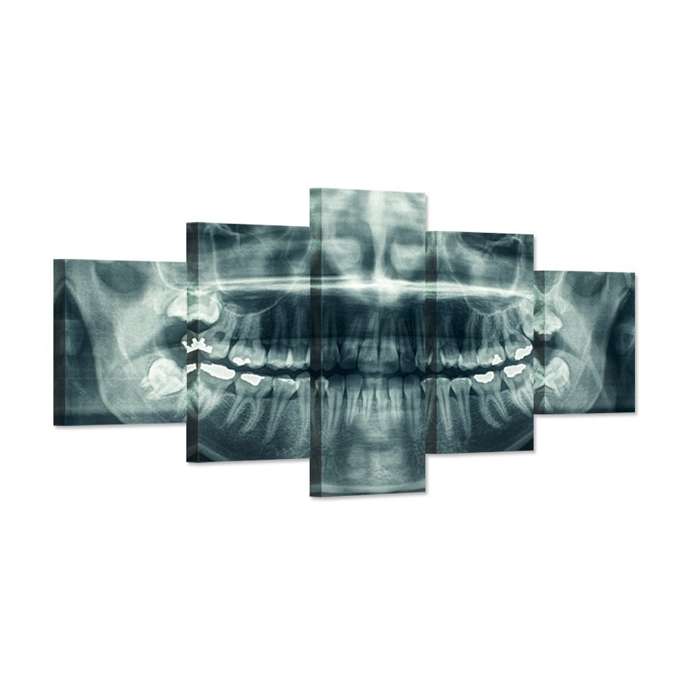 Hello Artwork - Modern Home Canvas Art X-Ray Dental Tooth Oral Panoramic Peel and Stick Wall Decals The Picture Teeth Decay Print On Canvas For Dental Clinic Wall Decoration