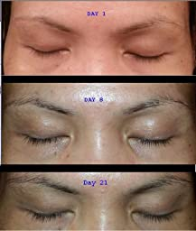 Eyelash Growth Serum for Long Eyelashes 2