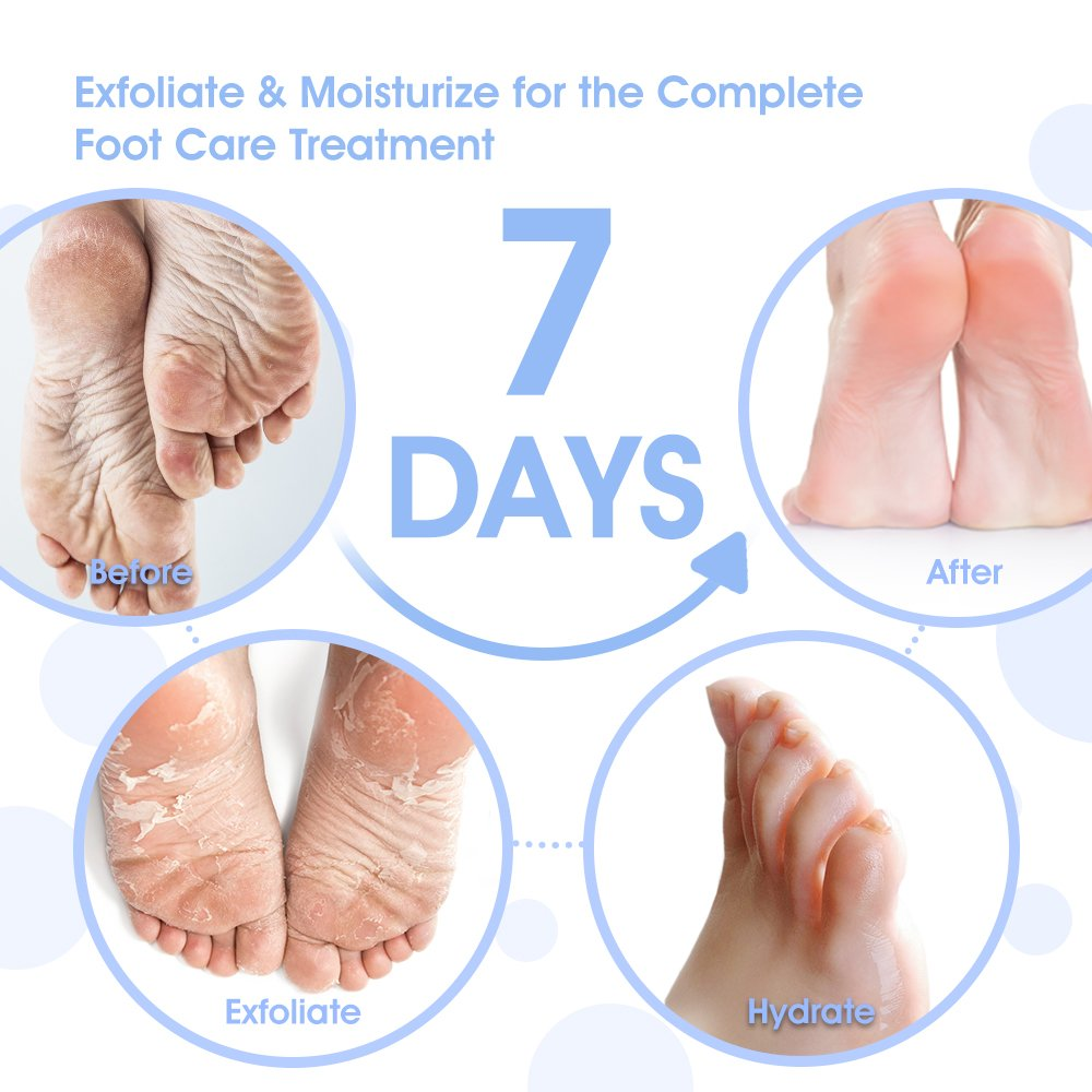 2-Pair Foot Peel Mask & Hydrating Mask Set, Antifungal XL Size Foot Mask for Baby Soft Foot, Exfoliating Callus Remover, Complimentary Pair of Socks for Complete Treatment, Lavender Scented