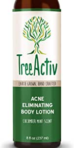 TreeActiv Acne Eliminating Body Lotion 8 fl oz Clears Body, Back, Butt and Shoulder Acne Anti-Acne Moisturizer Prevents Future Breakouts Cucumber Mint Scent