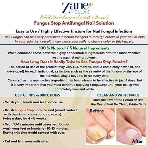 Fungus Stop. Kill 99.9% of nail fungus. Anti fungal Nail Solution. Toenails & Fingernails Solution. 0.33 oz -...