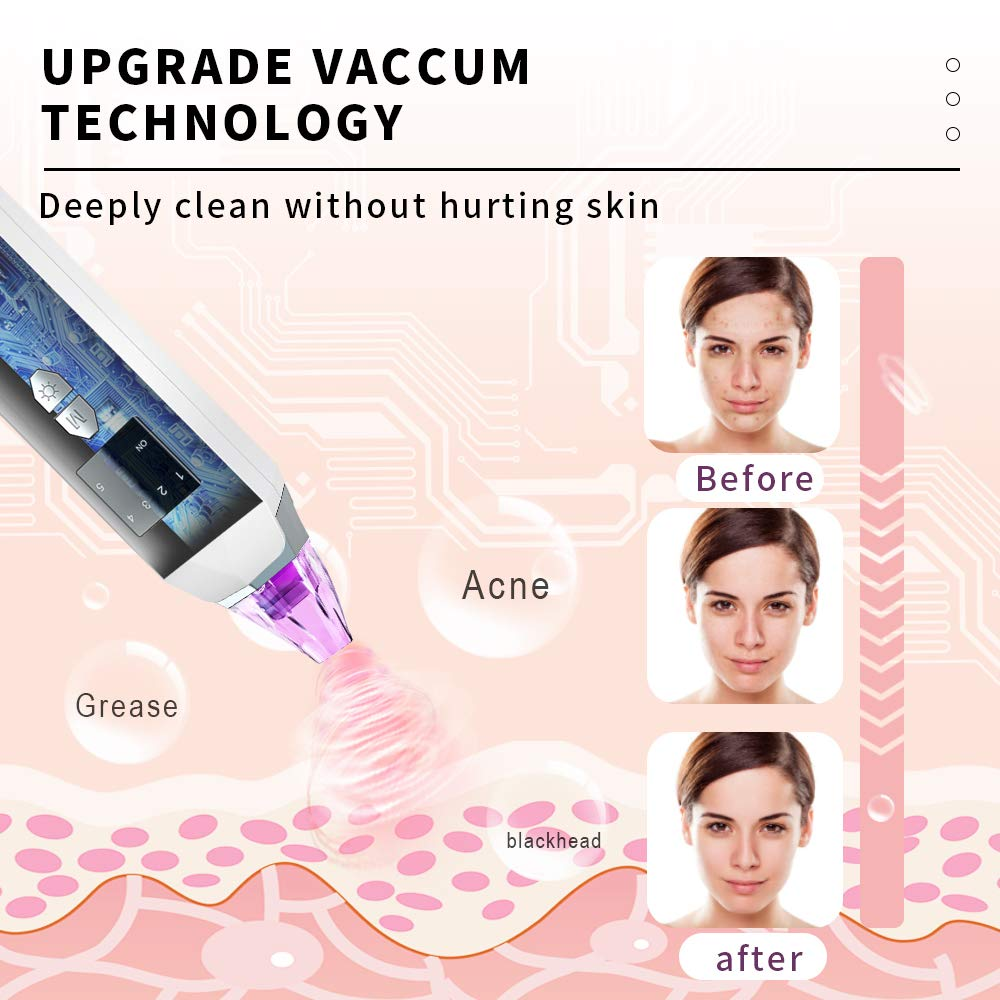 Blackhead Remover Vacuum Pore Cleaner - Merece Upgrade Blackhead Removal Tool Electric Black Head Face Vacuum Comedone Extractor Acne Sucker Whitehead Treatment with USB Rechargeable 3 Skin Care Light: Beauty