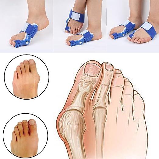 FanProd Bunion Bunion Splint, Big Toe Straightener, Hammertoe, Corrector Brace Pad, Hallux Valgus