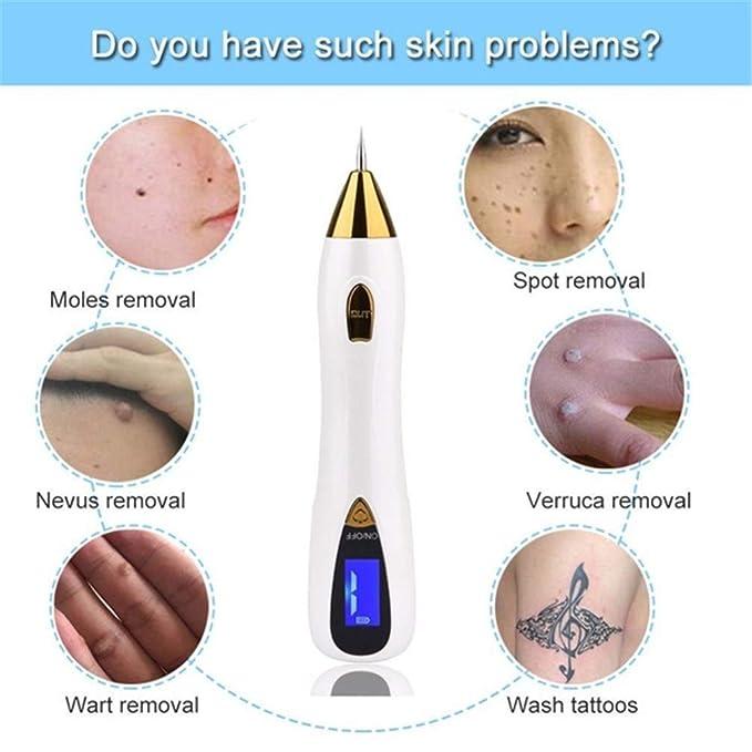 WGIRL Cuidado de la Piel con láser Mole Tatuaje de la peca La ...