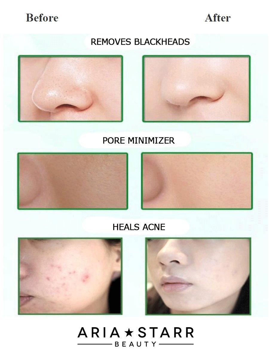 Natural Dead Sea Mud Mask, For Face Acne Oily Skin Blackheads Pore Minimizer