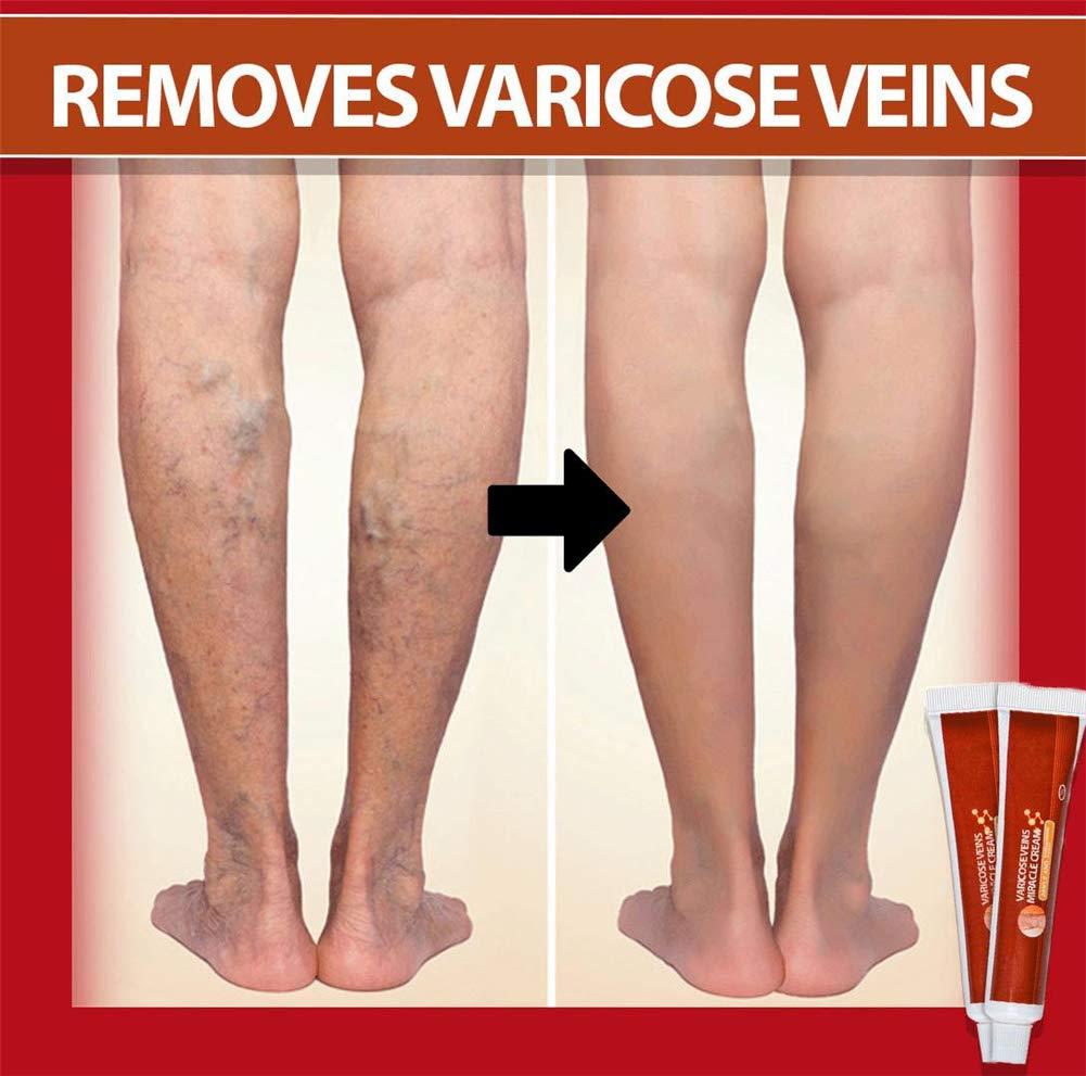 miracle unguent varicose vintage celebrități și vene varicoase