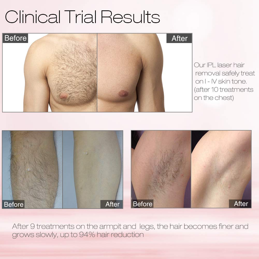 MiSMON Laser Hair Removal For Women and Men, At Home IPL Hair Removal  Device for Permanent