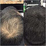 HAIR FUSION - 100% Real Human Hair Fibers - Conceal