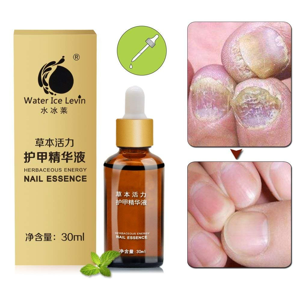 Water ice levin Nail Fungus Oil Nail Care,Nail Fungus Treatments,Fungus Stop,Toe Nail Fungus Removal Gel Anti Infection,Effective against nail fungus