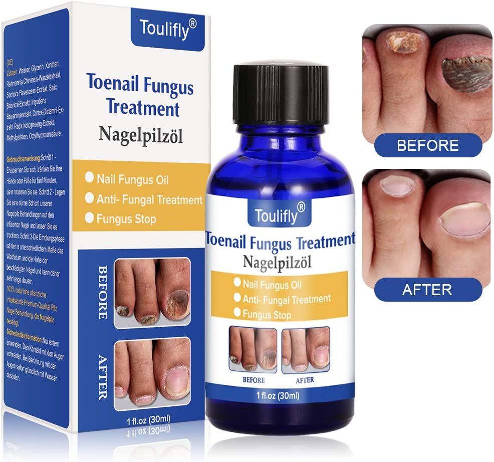 The Story Of Fungal Nail Infection Has Just Gone Global!