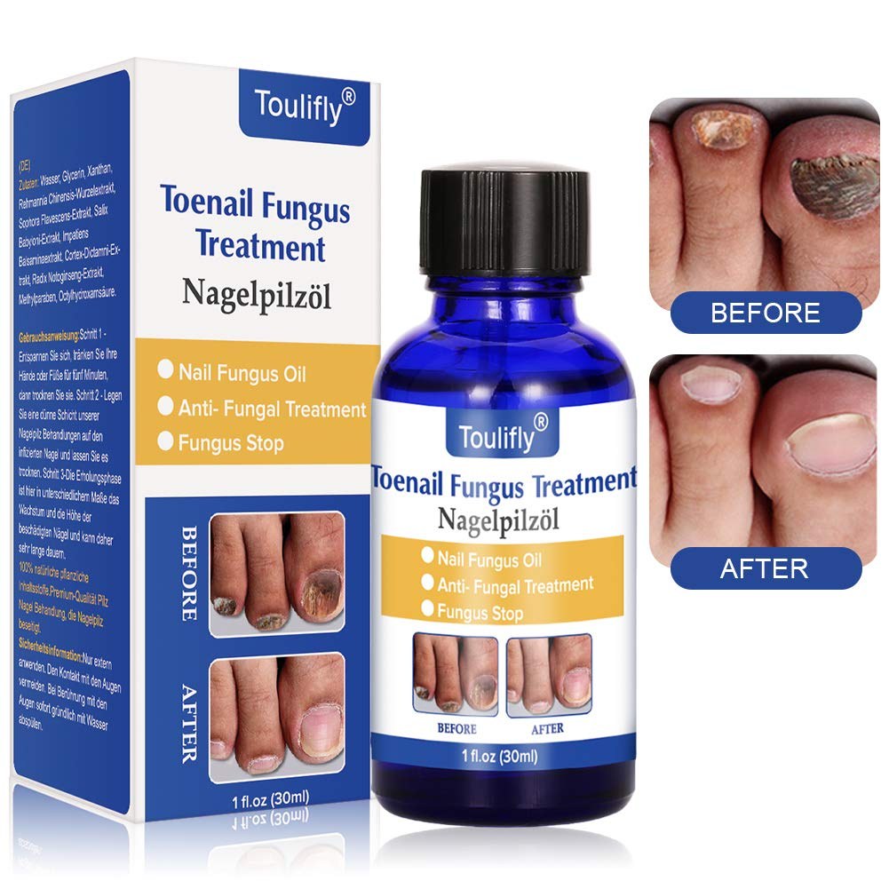 Nail Repair, Nail Repair Solution, Toenail Treatment, Effective Against Nail Infection Restores Discolored & Damaged Nails by Cherioll