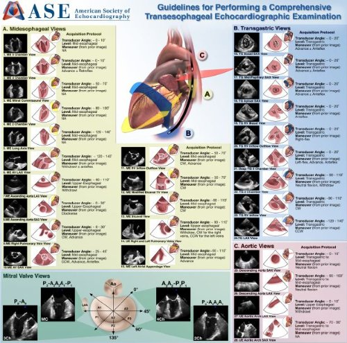Read Online Guidelines for Performing a Comprehensive Transesophageal Echocardiogram pdf epub