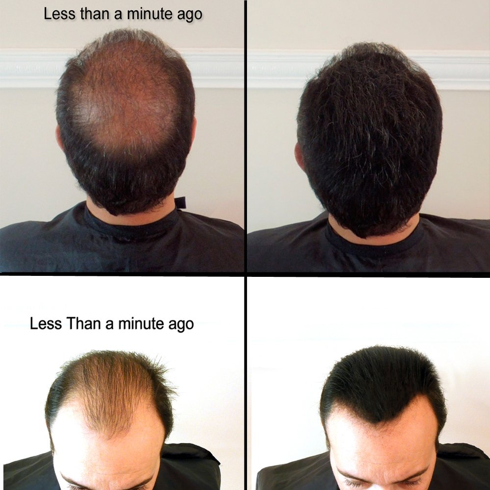 BLACK 100 GRAMS SUPER SIZE Original Samson Hair Building Fibers Refill for all brands by KERATIN RESEARCH